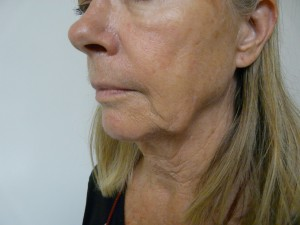 Los-Angeles-non-surgical-jowl-lift-2