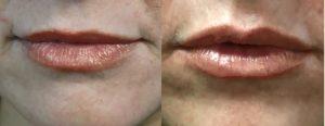 los-angeles-lip-enhancement-909991